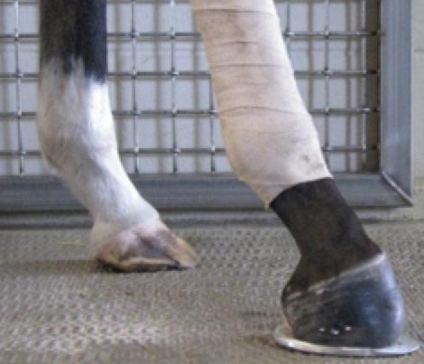 Severe-Flexural-Limb-Deformity-Post-op